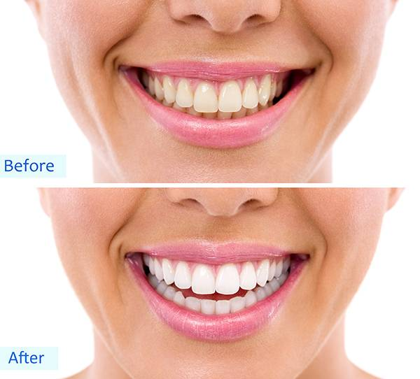 Teeth whitening - bleaching treatment, tooth whitening results