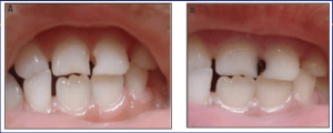 Before and After Cavity
