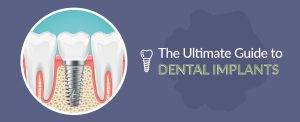 Ultimate Guide to Dental Implants