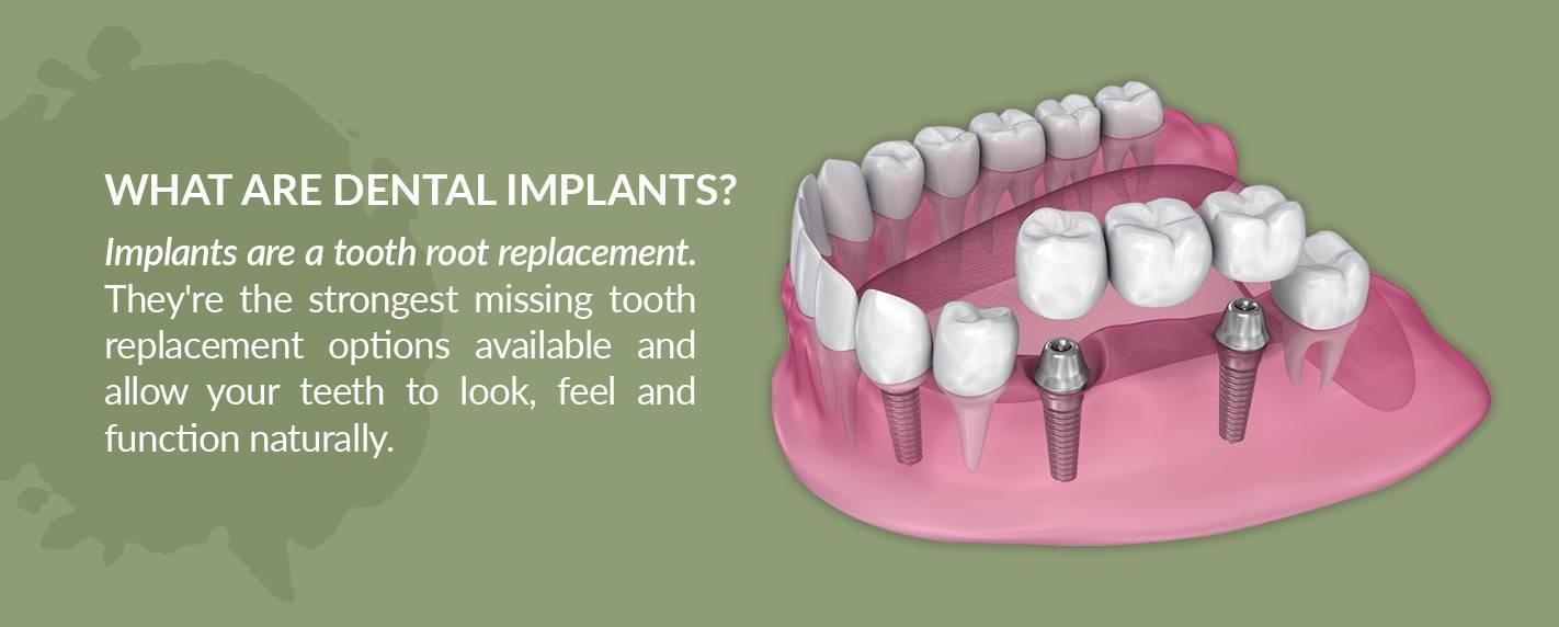 Dental Implant Description