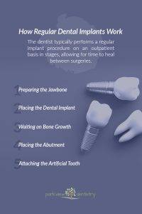 How Regular Dental Implants Work