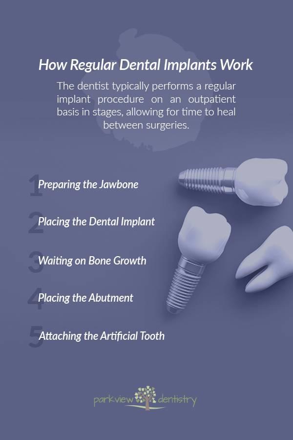 How Regular Dental Implants Work