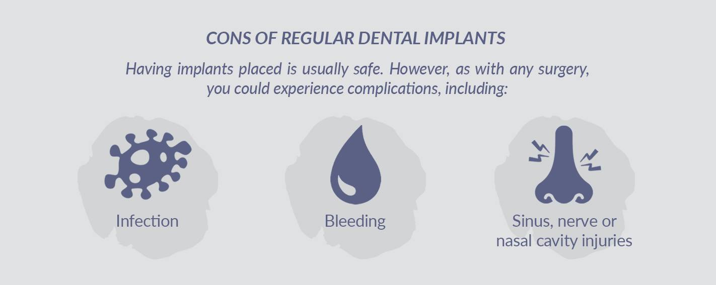 Regular Dental Implant Cons