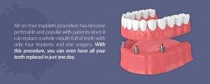 Pros & Cons of Dental Implants