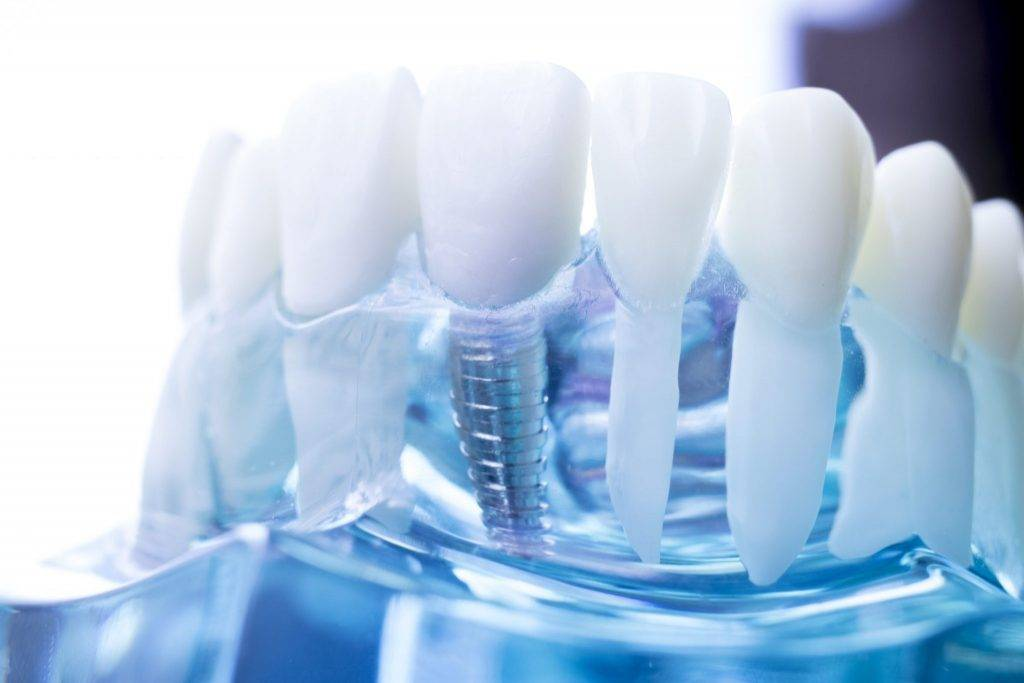 What Do Dental Implants Look Like?