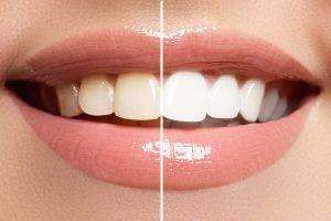 Dentist Parkview AZ