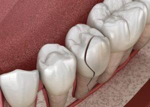 Cracked tooth Fountain Hills, AZ
